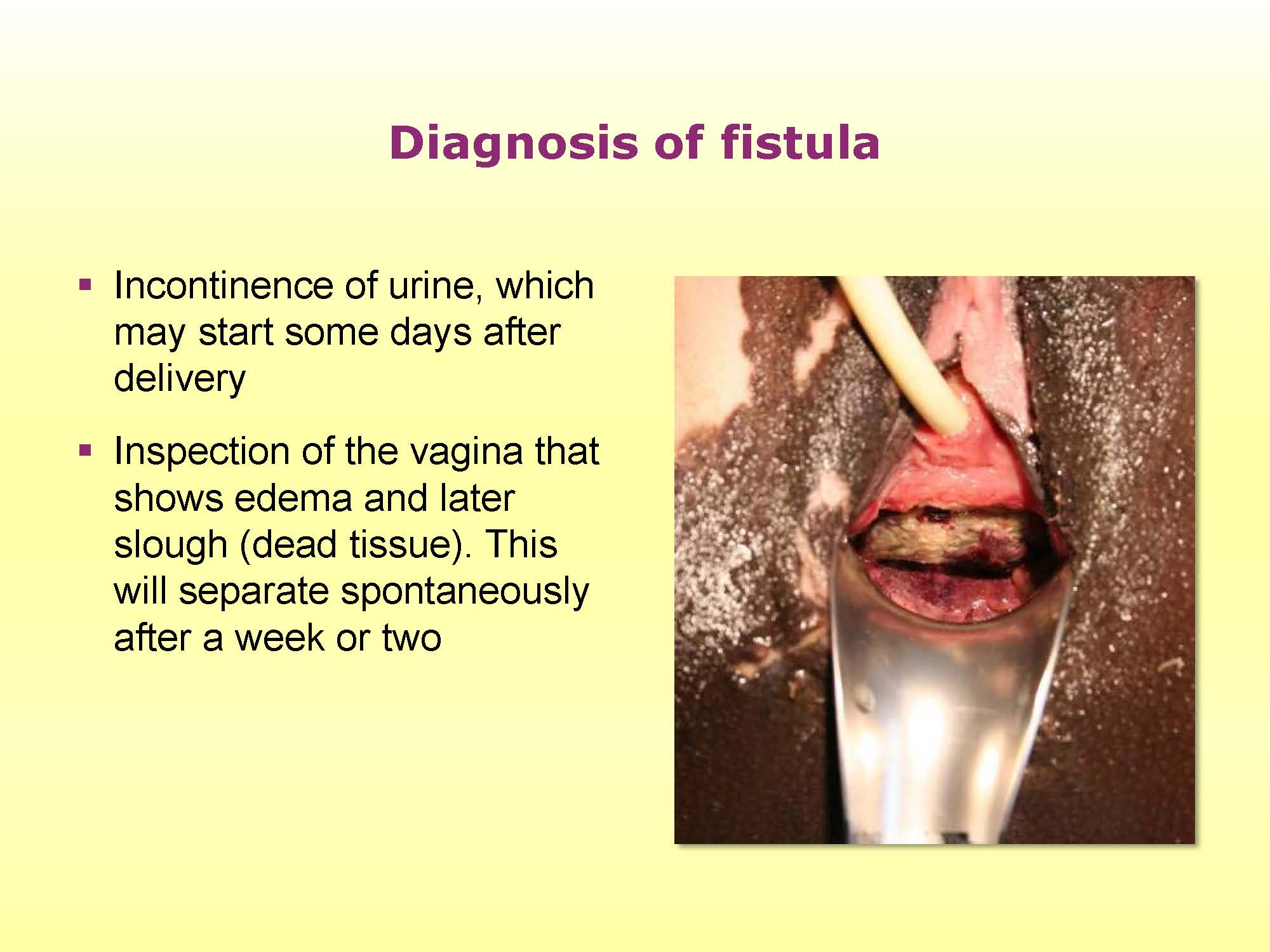 Obstetric Fistula Resource Tutorial Glowm