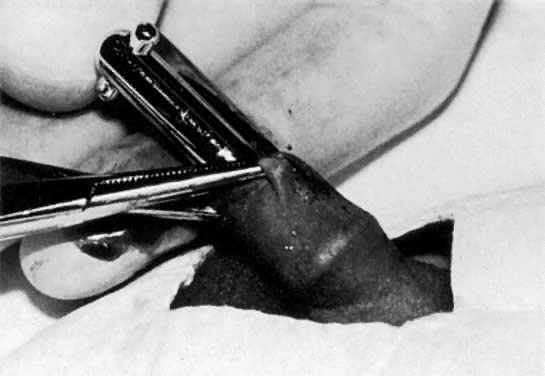 Circumcision technique: The appropriate size Gomco clamp bell is advanced ...