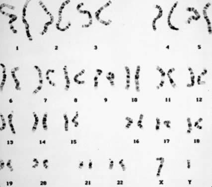 karyotype male. Normal male karyotype 46,XY