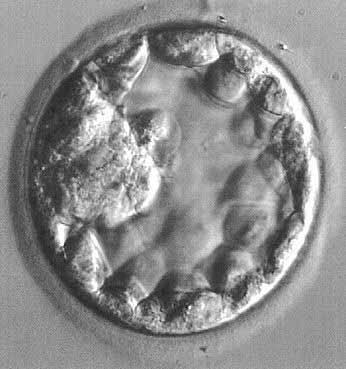 quistes blastocystis hominis