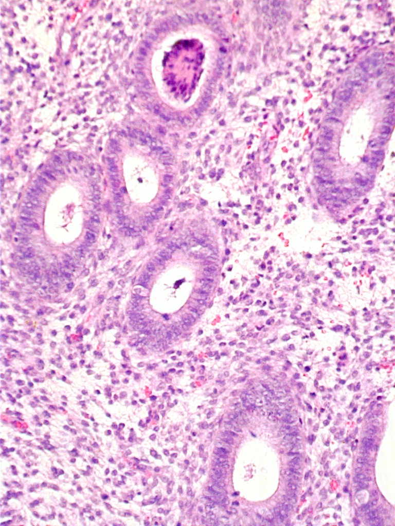 endometrium histology - photo #4