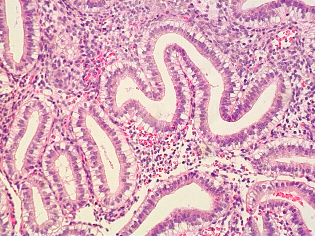 endometrium histology - photo #1