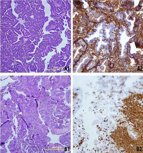 Metastatic Endometrial Cancer Prognosis