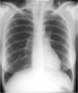 X-ray Atlas: Chest X-ray | GLOWM