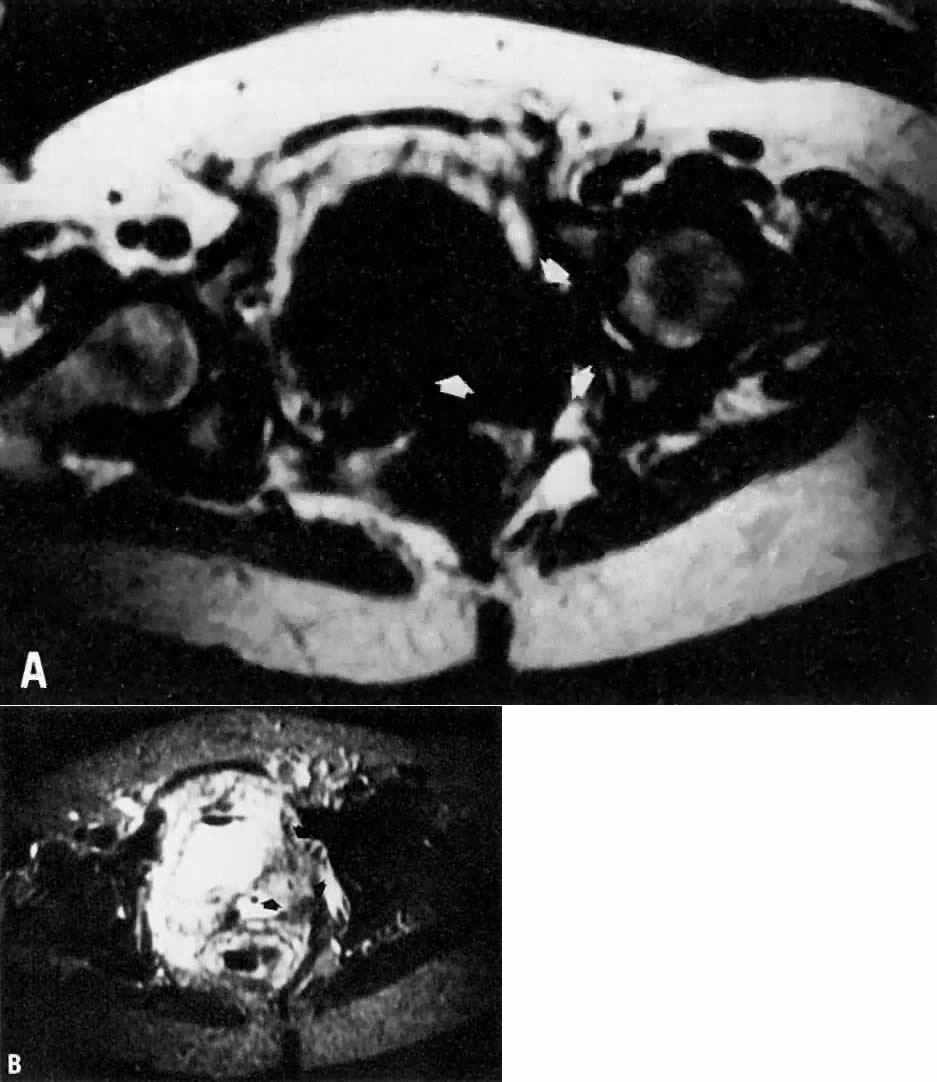 MRI Atlas | GLOWM