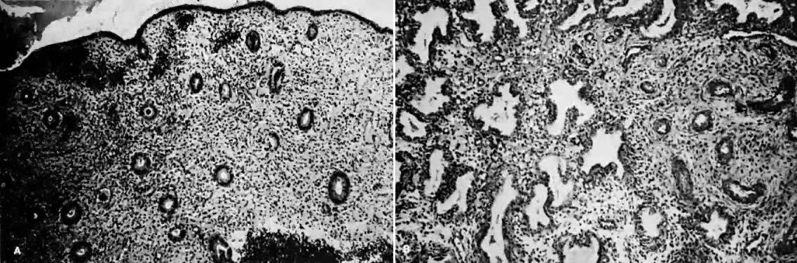 Endometrium result proliferative biopsy endometrial biopsy