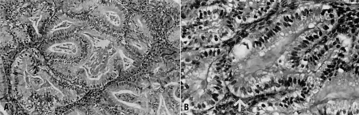 Histology secretory endometrium Hormonal pathology