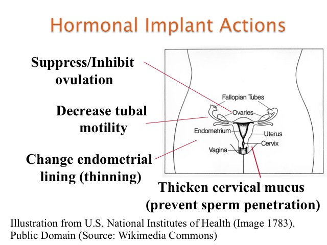 Contraceptive Implant Procedure - St. Paul Hospital ...